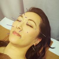 浜崎鍼灸整骨院の写真